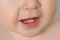 Bebeklerde Ağız Ve Dış Bakımı
